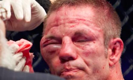 UFC borci pre i posle borbi! (VIDEO)