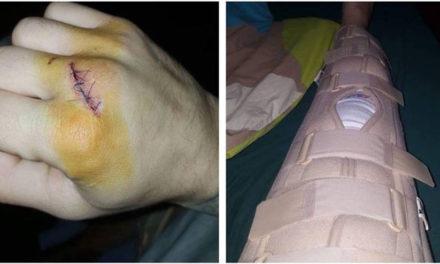 Vaso Bakočević povređen, ništa od borbe sutra na MEGDAN2 nećemo ga gledati neko vreme!